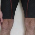 8 mois pour guérir du syndrome de l'essuie glace