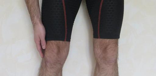 syndrôme de l'essuie-glace